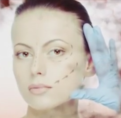 A middle aged woman preparing for a vampire facial or Platelet Rich Plasma procedure.