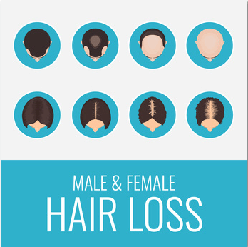 A Better Way to Solve the Hair Loss Problem