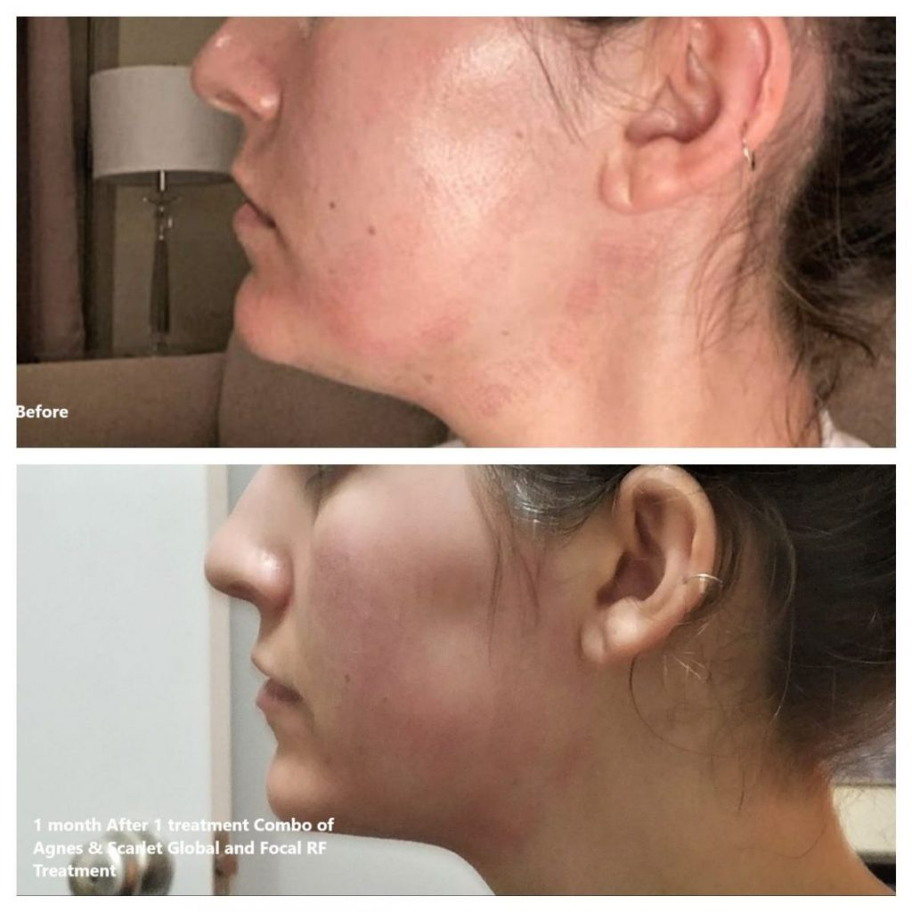 Before after photo of a woman's under-chin area after an Agnes Focal Radio Frequency treatment.