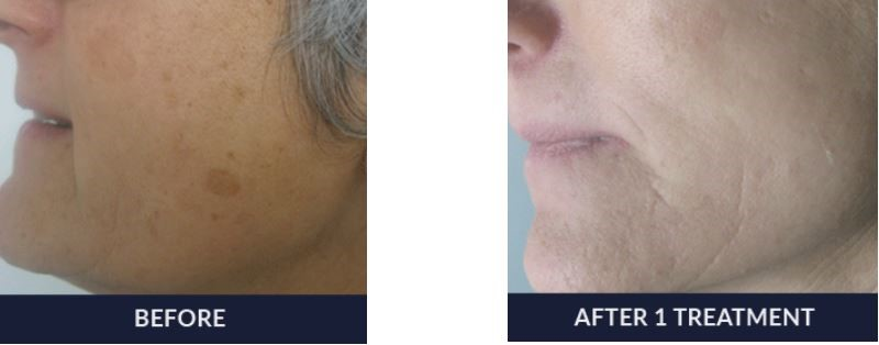 A woman's face before and after an IPL Photofacial treatment - you can clearly see that she has fewer sun spots on her cheek.