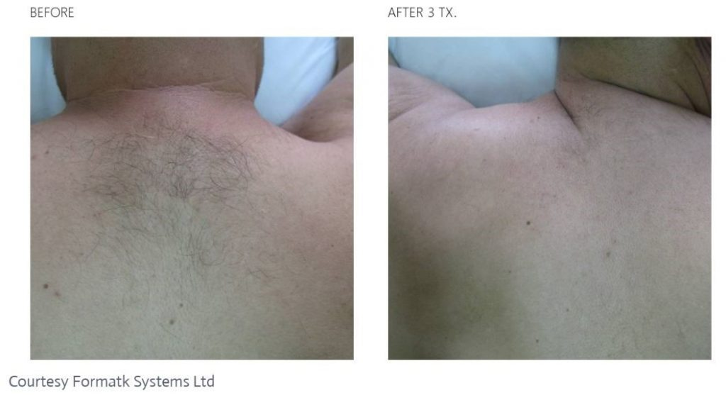 Before and after Laser Hair Removal on a man who had a hair on his back