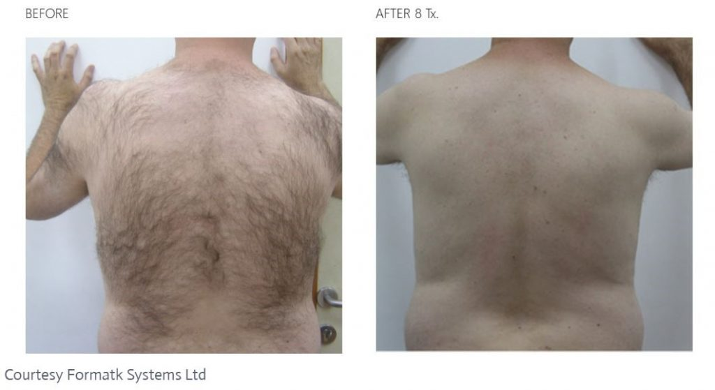 Before and after Laser Hair Removal on a man who had a a great deal of dark hair on his back