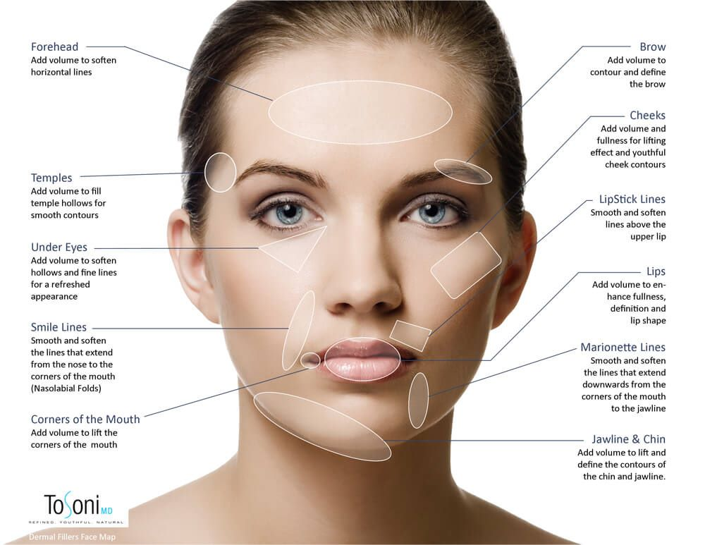 Derma fillers map showing the different areas of the face where fillers can be used.