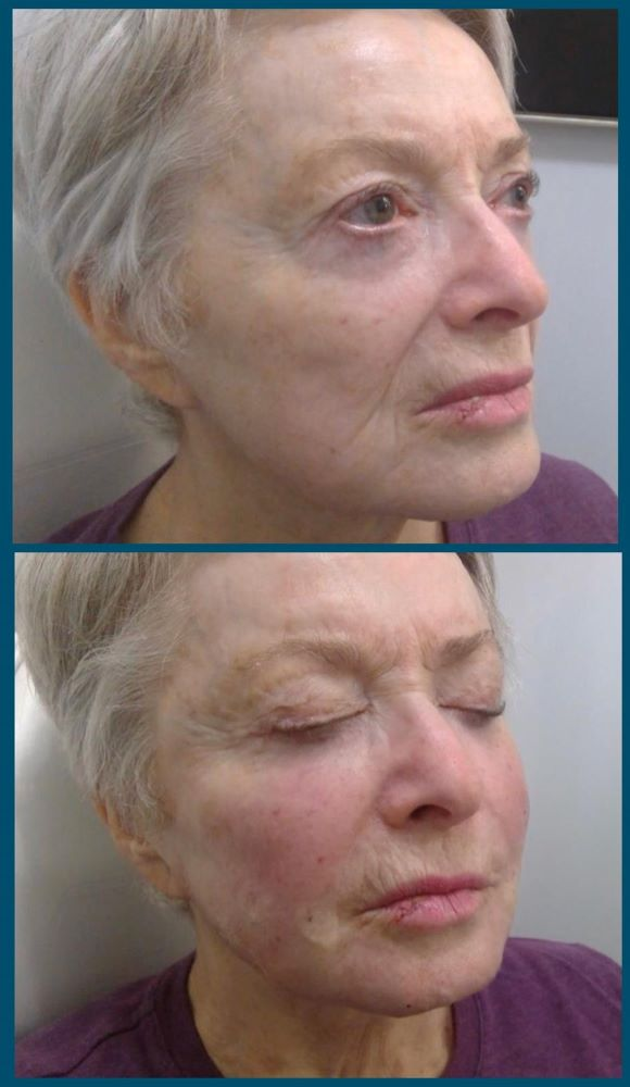 Sculptra liquid facelift before and after