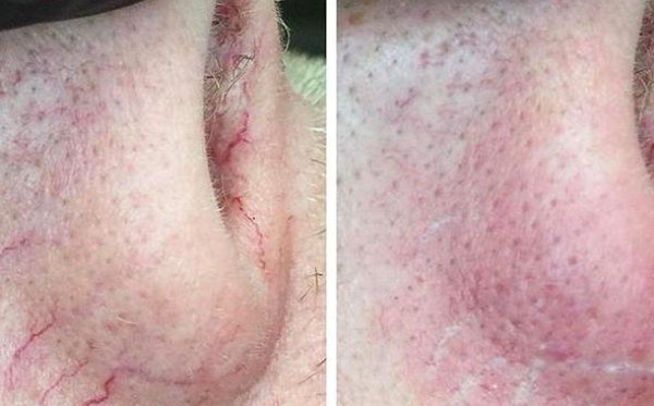 Clear by Skin Sheek before after of broken blood vessels on a nose.