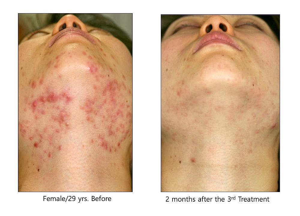 Adult female with acne before and after acne treatment using Agnes Radio Frequency.