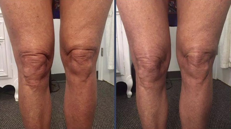 Knees before and after Sculptra