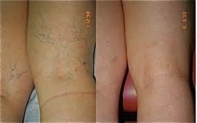 Back of legs with varicose veins - good candidates for sclerotherapy Charlotte.