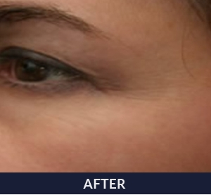 Woman after treatment with NeoGen PSR resurfacing.